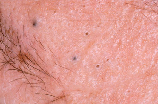 What do Vaginal Pimples and Genital Warts Look Like -Treatments