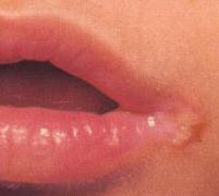 Angular-Stomatitis.jpg Angular Stomatitis Picture