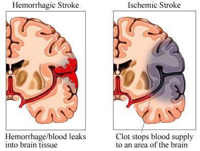 Hemiparesis caused by stroke.